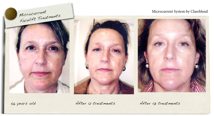 microcurrent facelift treatments with Microcurrent System by Clareblend