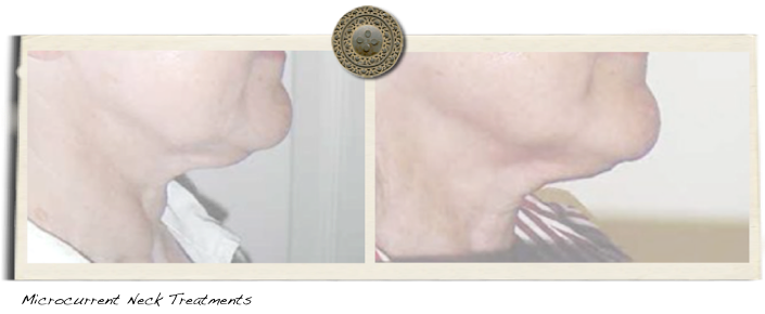 microcurrent neck treatments with Microcurrent System by Clareblend